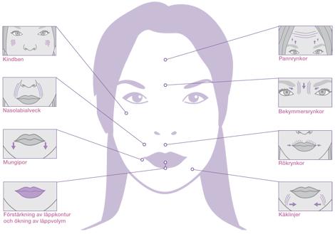 Gör det ont att förstora läpparna
