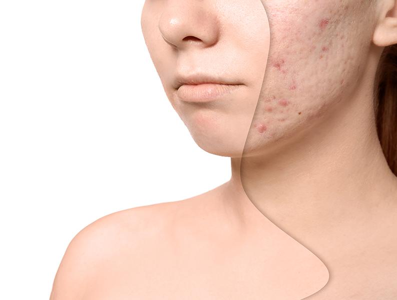 hudprodukter mot acne