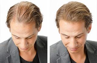 toppik hår